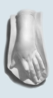 Plaster Cast Arm